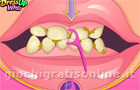 Giochi per ragazze : Bad Teeth Makeover